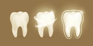 抜歯_私の言葉で超〜反応したインド人歯科医